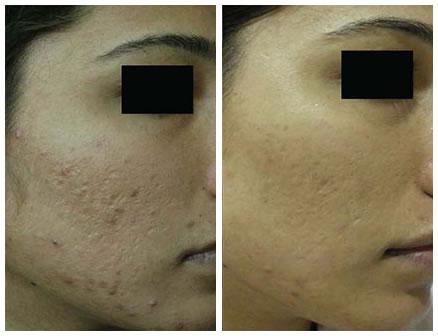 pore-hiperpigmentacija-akne