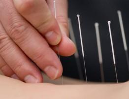 medicinska akupunktura