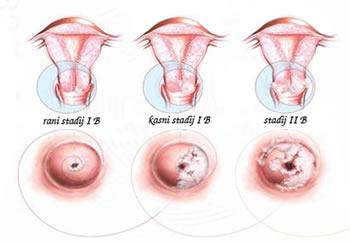 progresija-raka-maternice